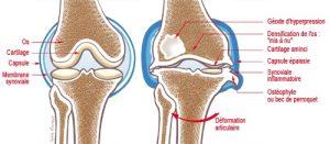 Arthrose : tout savoir sur l'arthrose